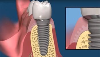Задачи ортопедической стоматологии