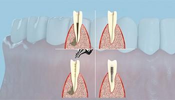 Удаление верхушки зуба