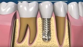 Имплантология, когда необходимо вставить зубы