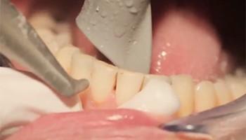Удаление зубных отложений ультразвуком