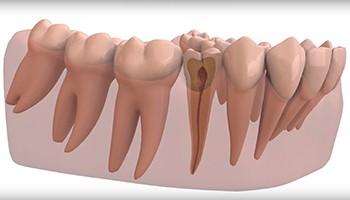 Современные способы удаления зубного нерва