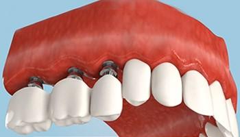 Виды вставных зубов
